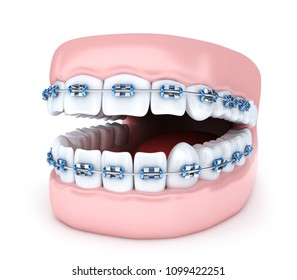Tooth and jaw brackets on white background. 3d illustration