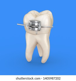 Tooth and metal braces. 3D illustration concept