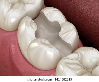 Tooth preparation for inlay placement. Medically accurate 3D illustration of human teeth treatment
