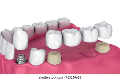 Tooth supported fixed bridge, implant and crown. Medically accurate 3D illustration