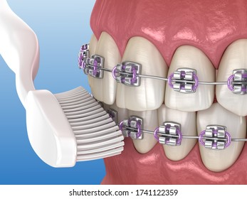 Toothbrush cleaning braces process. Medically accurate 3D illustration of oral hygiene.