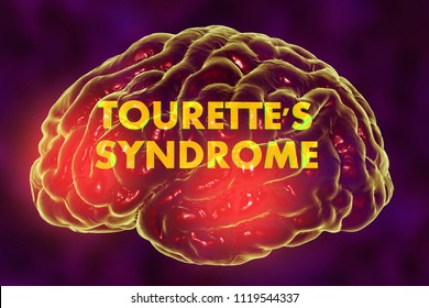 Tourette's syndrome, medical concept, 3D illustration. A neuropsychiatric disorder characterized by a spectrum of tic disorders