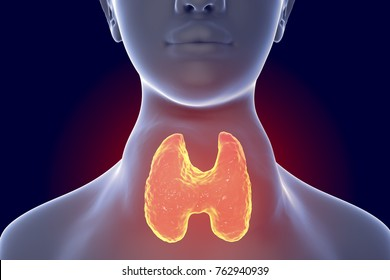 Toxic diffuse goiter, Flajani-Basedow-Graves' disease. 3D illustration showing enlarged thryoid gland in a female with hyperthyroidism