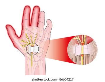 transverse carpal ligament compressed median nerve
