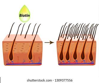 Treatment of alopecia. Vitamins hair. Biotin. Seborrhea skin and hair. Dandruff, seborrheic dermatitis. Baldness, hair growth, baldness. Anatomical structure. Infographics. illustration.