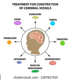 Treatment of cerebral vascular constriction. World Stroke Day. Infographics. illustration on isolated background