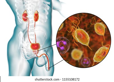 Trichomoniasis infection in man, 3D illustration showing male anatomy of genitourinary system and close-up view of Trichomonas vaginalis protozoan causing urethritis