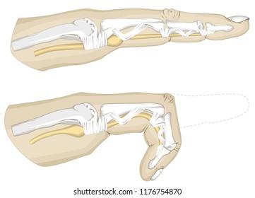 Trigger Finger Illustration, Finger pointing