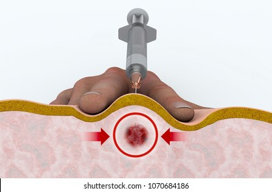 A trigger point injection is an outpatient procedure designed to reduce or relieve the back pain caused by trigger points Intramuscular injection, puncture under skin with syringe. 3d rendering