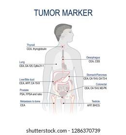 Tumor marker or biomarker. Cancer Development. diagram forscience and medical use