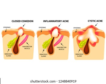 Types of acne. Closed comedones, inflammatory acne, cystic acne. The structure of the skin. Infographics. illustration on isolated background