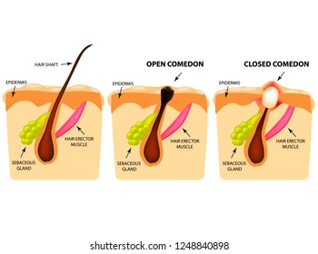 Types of acne. Open comedones, closed comedones, Skin structure. Infographics. illustration on isolated background