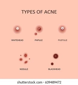 Types of acne, pimples.