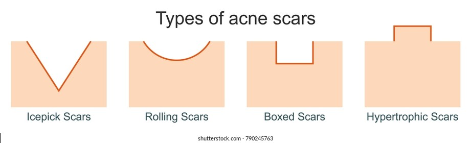 Acne Images Stock Photos Vectors Shutterstock