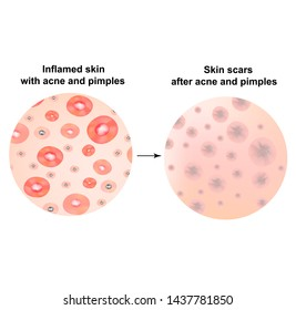 Types of blackheads, pustule, acne. Scarred skin after acne and acne. Infographics. illustration on isolated background.
