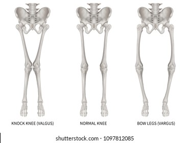 Types disease leg bone problem of knock knee -Normal and Bowlegs or valgus and varus knee- 3D Medical illustration- Human Anatomy and Medical Concept-isolated on white background.