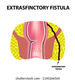 Types of fistulas of the rectum. Paraproctitis. Anus. Abscess of the rectum. Infographics. illustration on isolated background.