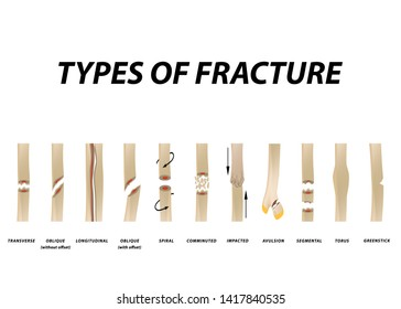 Types of fracture. Fracture bone set. Infographics. illustration on isolated background.