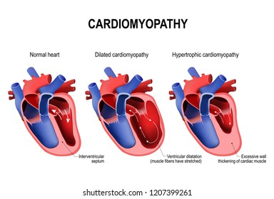 Types of heart diseases: hypertrophic cardiomyopathy and dilated cardiomyopathy. healthy heart and heart with Pathology. illustration for medical use