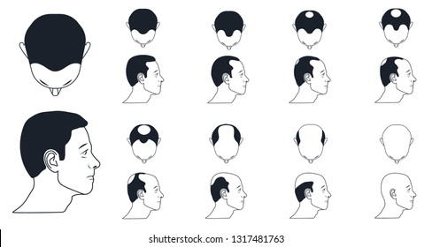 types of male baldness, norwood scale icons