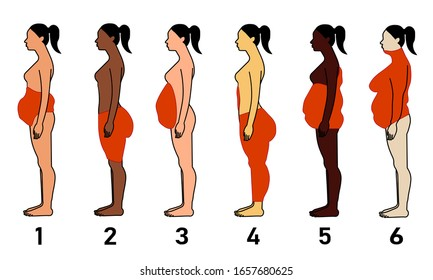 Types of Obesity in the Female Body, sketchy illustration, healthcare concept.
