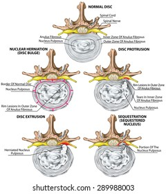 Types and stages of lumbar disc herniation, herniated disc, nuclear herniation, disc bulge, protrusion, extrusion, sequestration, lumbar vertebra, intervertebral disk, vertebral bones, superior view