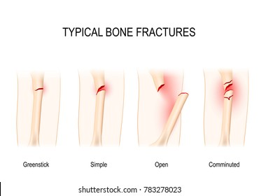 Typical bone fractures: Greenstick, Simple, Open, Comminuted. scheme for medical use
