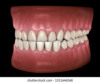 Underbite dental occlusion ( Malocclusion of teeth ). Medically accurate tooth 3D illustration