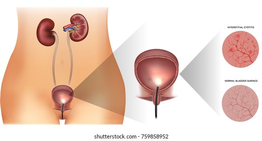 Urinary bladder examination, healthy lining and unhealthy inflamed lining with cystitis on a white background. Female silhouette and detailed urinary system.