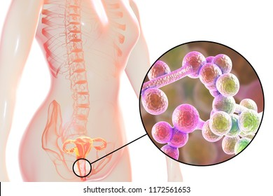 Vaginal thrush, female candidiasis, 3D illustration showing fungal vaginitis and close-up view of yeast fungi Candida