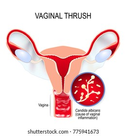 Vaginal yeast infection are due to excessive growth of Candida albicans (cause of vaginal inflammation). Candidal vulvovaginitis or vaginal thrush