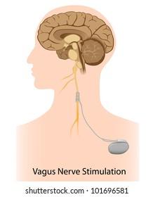 Vagus nerve stimulation therapy