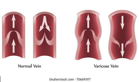 Varicose vein and normal vein illustration.