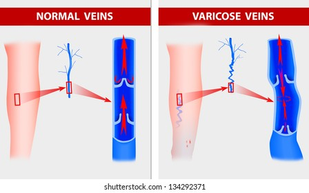 Varicose veins. The illustration shows how a varicose vein forms in a leg.