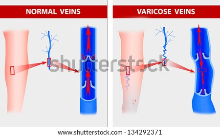 Varicose Veins The Illustration Shows How A Vein Forms In Leg