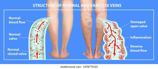 Eczema uscată pe picioare cu varice foto