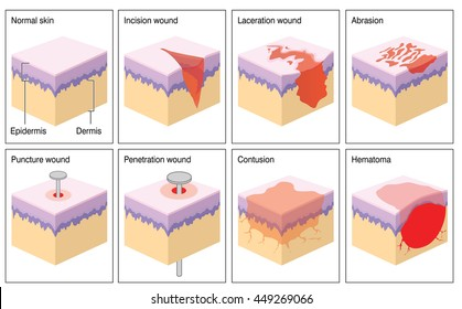 Various types of skin wound.