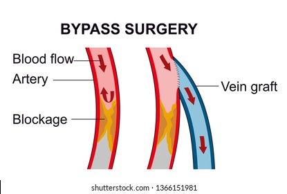 A vascular bypass surgery routes blood to flow around of the blockage area in the artery.