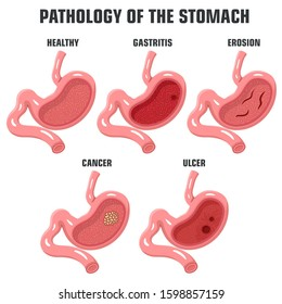 vector Medical icon pathology of the stomach. Image stomach cancer, ulcer, gastritis, erosion  and normal. Illustration stomach pathology in flat style