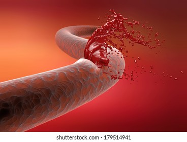 Vein cut artery rupture bleeding blood. Cutting a vein bleeding risk