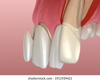 Veneer installation procedure over central incisor and lateral incisor. Sliced view, 3D illustration