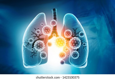 Viral lung infections, lung infection conept. 3d illustration