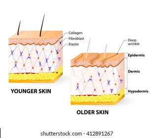 Visual representation of skin changes over a lifetime. Collagen and elastin form the structure of the dermis making it tight and plump.