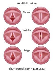 Vocal cord lesions