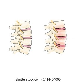 Water color; normal and abnormal of spine. lumbar spondylosis. Cause of back pain. Degenerative change of spine in elderly. Illustration
