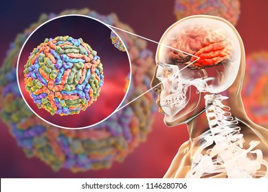 West Nile virus WNV encephalitis, 3D illustration showing brain infection and close-up view of WNV in the brain. Encephalitis in West Nile fever often affects temporal lobes, as shown here