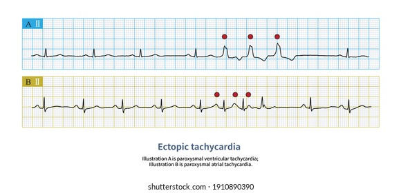 When more than or equal to 3 ectopic heart beats occur continuously and the frequency exceeds 100 bpm, ectopic tachycardia is formed.