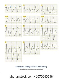 When tricyclic antidepressants are intoxicated, the QRS complex is widened and the shape resembles hyperkalemia. The diagnosis can be confirmed by asking the medical history and medication history.