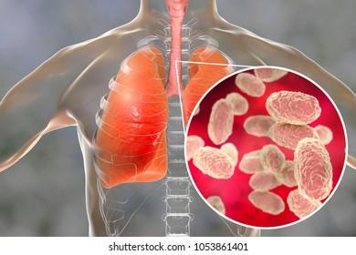 Whooping cough bacteria Bordetella pertussis in human airways