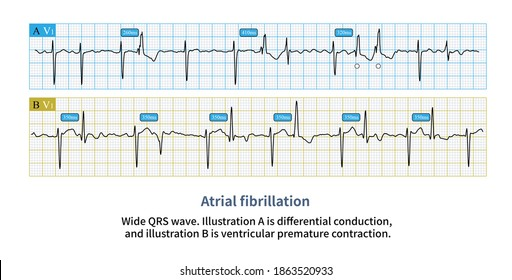The wide QRS complex in atrial fibrillation needs to distinguish between supraventricular heartbeat and ventricular heartbeat to determine clinical treatment strategies.